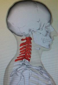 7つある頸椎(cervical vertebrae)上からC-1